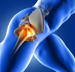 arthrose et douleurs articulaires